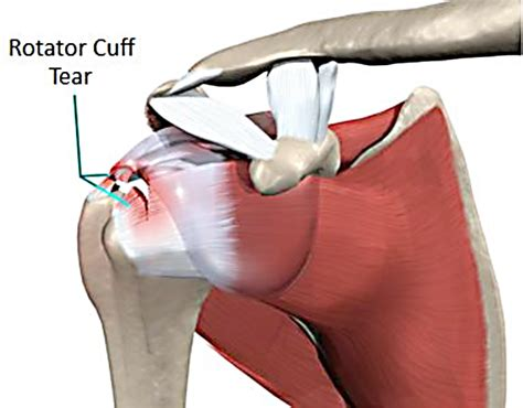 Does A Rotator Cuff Tear Have To Be Repaired With Open