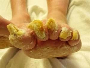 Чем лечить грибок ногтя на ноге лекарство