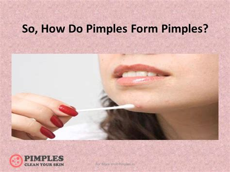 how do pimples form pimples and its prevention youtube