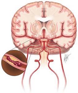 Ischemic Stroke Stroke