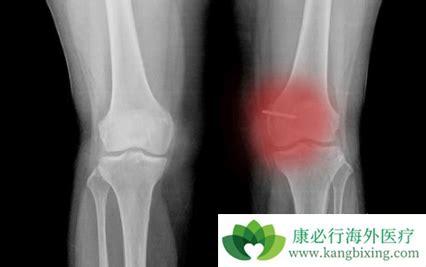 骨纤维肉瘤与骨恶性纤维组织细胞瘤有什么区别?【康必行海外医疗】