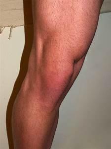 Vazy v koleni