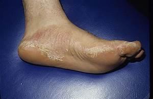 Лечение псориаза ладонно подошвы