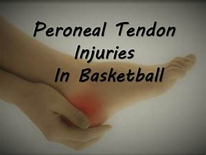 Peroneal Tendon Injuries In Basketball