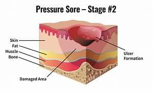 Skin  U0026 Pressure Sores After Spinal Cord Injury