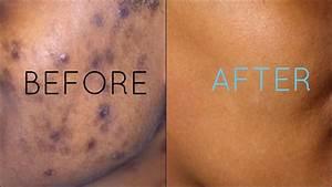 Dark Spots Fade Away | Remove Dark Spots Extract White ...