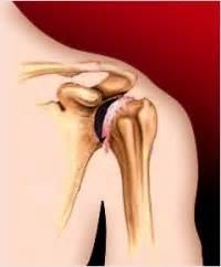 Боль в правом плечевом суставе при движении