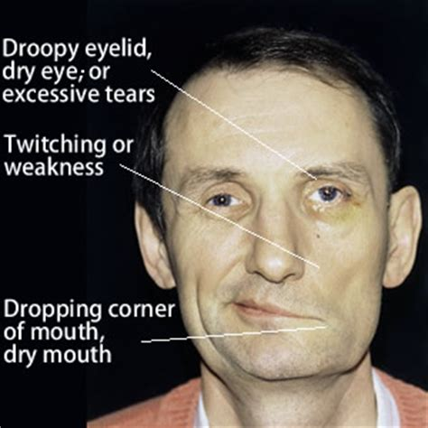 Bell's Palsy Or Facial Paralysis  Causes And Treatment. Fine Signs Of Stroke. Faux Wood Signs Of Stroke. Pica Signs. All Inclusive Signs Of Stroke. Traveler Signs Of Stroke. Posterior Signs. Horse Trail Signs Of Stroke. Appendix Anatomy Signs