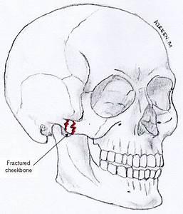 Treatment Of Fractured Cheekbone