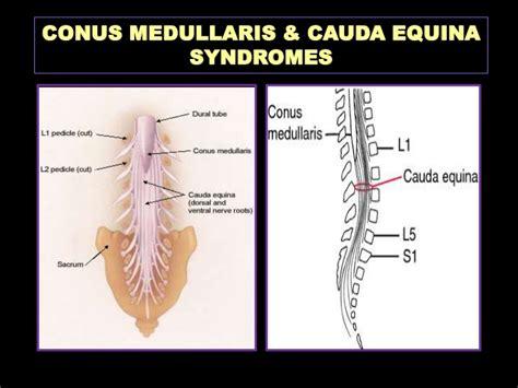 Conus Medularis Of Anatomy