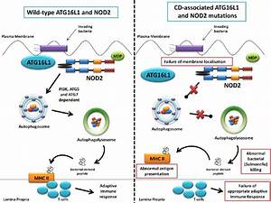 Summary diagram showing the role of ATG16L1 and NOD2 in ...