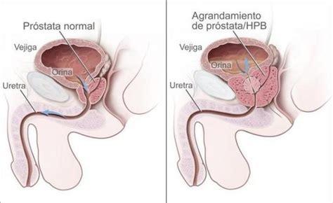 前立腺 肥大 症 治療