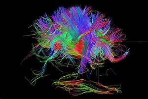 Can We Build A Complete Wiring Diagram Of The Human Brain