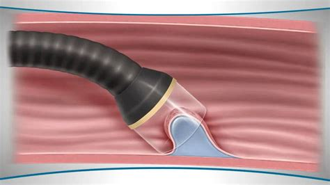 endoscopic mucosal resection youtube