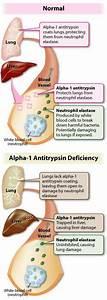 155 best Alpha-1 Antitrypsin Deficiency images on ...
