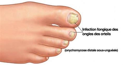 mycose du siege chez le bebe voici comment guérir une mycose des ongles naturellement