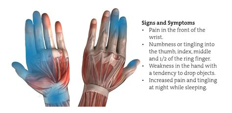carpal tunnel syndrome cts   workplace