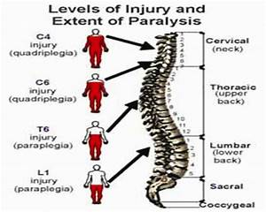 Spinal Cord And Level Of Injury