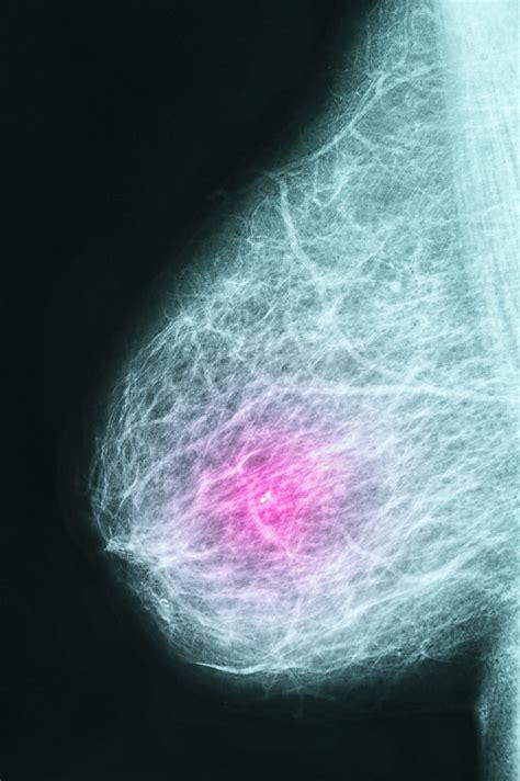 abnormal mammogram   irregular mammogram followups