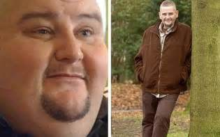 Gastric Bypass Men Before and After Surgery