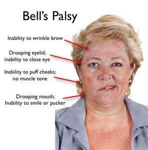 What Is Bell's Palsy? – Herbs Solutions By Nature Bell's Palsy