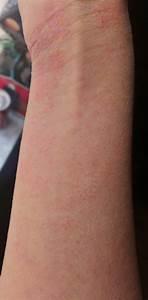 Emo Cuts On Wrist Related Keywords - Emo Cuts On Wrist ...