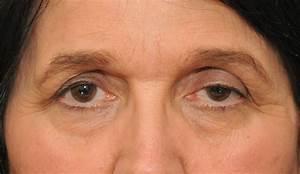 Blepharoptosis; Ptosis, Eyelid