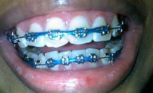 The gallery for --> Dark Purple Braces For Teeth