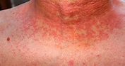 What are the symptoms of Scarlet Fever? What is it and is ...
