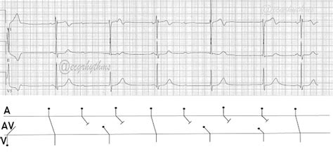 Ecg Rhythms Advanced Heart Block