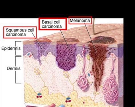 basal cell carcinoma basal cell carcinoma