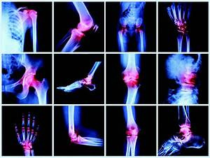 Rheumatology Diagram