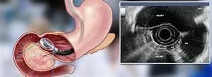 Endoscopic Ultrasound Brisbane