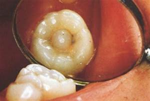 Image Gallery mulberry molars