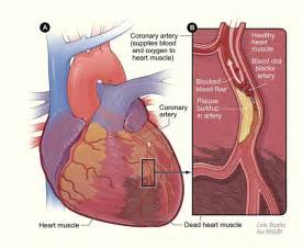 ... , inactivity increases risk of heart disease cardiovascular CVD Heart Diseases