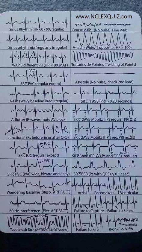 ekg heart rhythms cheat sheet nurse stuff critical
