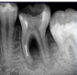 root canal vs tooth extraction which is better and is