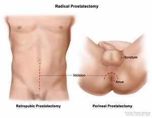 vulvar reconstruction