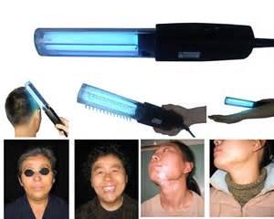 uv fototerapia l 311nm estrecho uvb de banda para