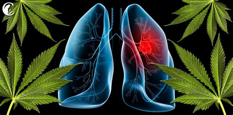 fotos de cancer en el pulmon el cannabis y el c 225 ncer
