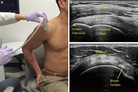 Ultrasound in Rotator Cuff Evaluation | Musculoskeletal Key