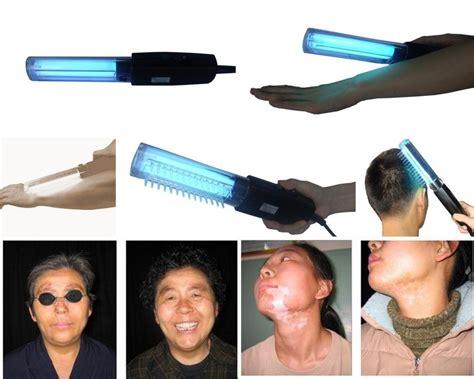 narrow band uvb l vitiligo best treatment portable held 311nm narrow