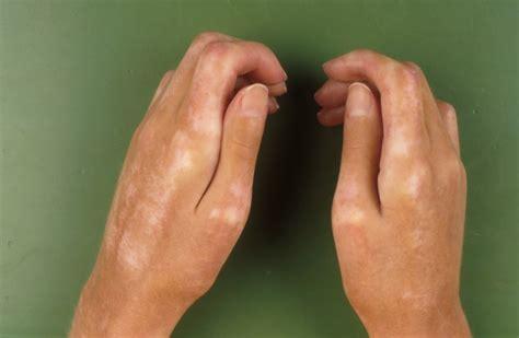 systemische sclerodermie sclerodermia generalisata