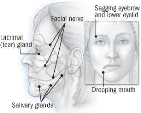 Bell's Palsy - Ailments We Treat Bell's Palsy
