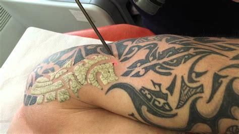 enlever  tatouage au laser youtube