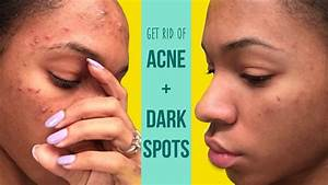 How I Get Rid Of Acne And Fade Dark Spots  Vickylogan