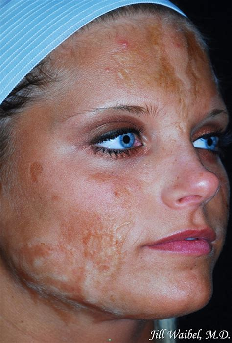 Burn Scars Before and After Pictures in Miami, FL | Miami