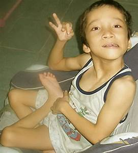 Cerebral Palsy Pictures