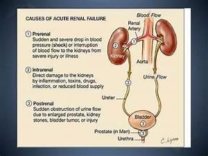 The Pathophysiology Of Acute Renal Failure