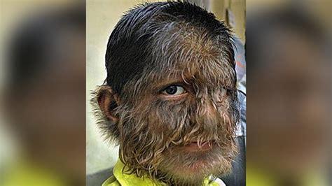 boy face hairiest werewolf india body